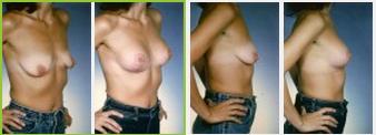 Washington DC breast lift patient